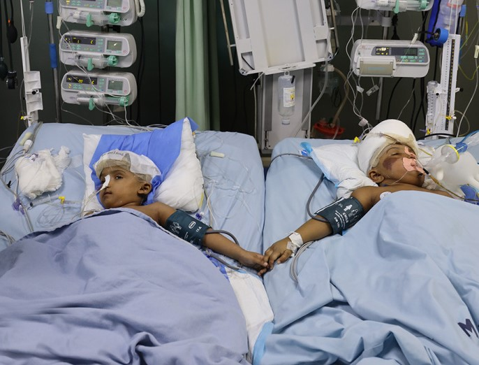 Separated Bangladeshi Siamese Twins Return Home after Two Years post's picture
